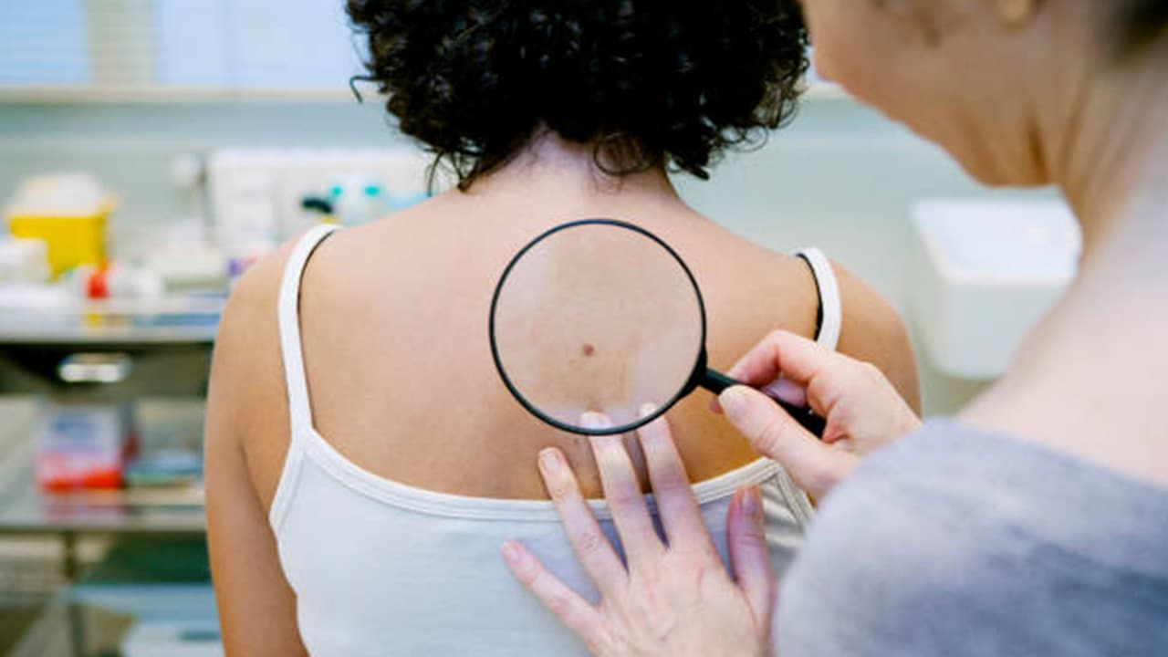 Understanding Skin Cancer -- Symptoms