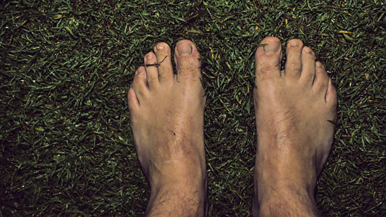 Turf Toe Symptoms Causes And Treatments