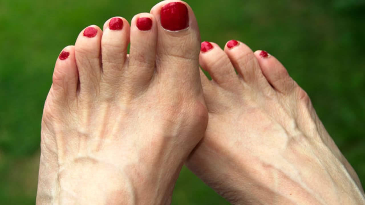 06feb832f7e What Are Bunions?