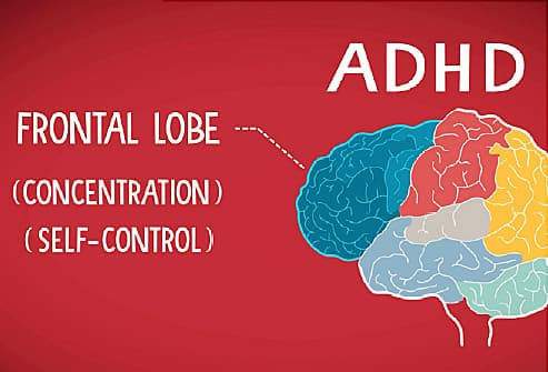 Your Brain With ADHD