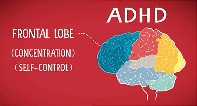 An Up Close Look At Your Adult Brain With Adhd