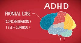 your brain with adhd illustration
