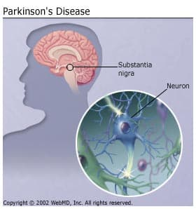 the characteristics and signs of the parkinsons disease a nervous system illness Nervous system disease - localization of neurological disease: the nature and pattern of the symptoms and physical signs of neurological disease allow inferences to be drawn about the sites of the lesions causing them one symptom indicating muscular disease is weakness, usually symmetrical.