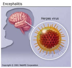 Encephalitis - Causes & Risk Factors