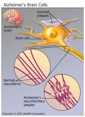 A description of the alzheimer disease and its causes