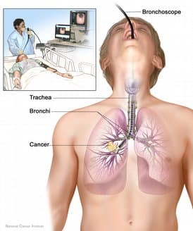 Small-Cell Lung Cancer: Symptoms, Causes, Tests, Treatment