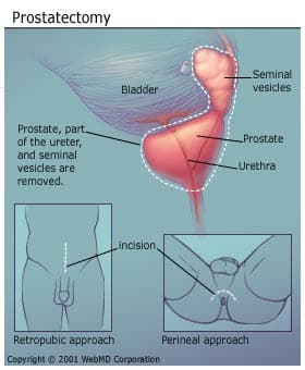 Radical Prostatectomy Purpose Procedure Types Risks Recovery
