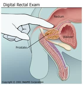 Digital Rectal Exams