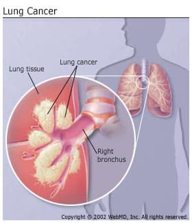 Lung Cancer: Overview of Non-Small Cell and Small Cell Types