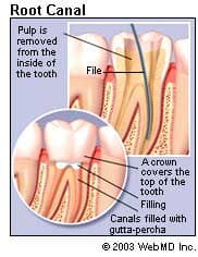 Root Canal Procedure for Infected Tooth Nerve: Purpose