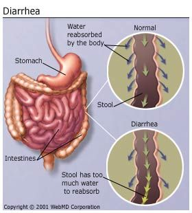 causes of diarrhea Diarrhea is characterized by loose, watery stools or a frequent need to have a  bowel movement it usually lasts a few days and often.