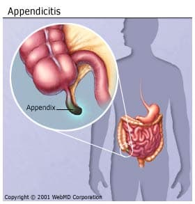 appendicitis: early signs & symptoms, causes, surgery, recovery, Cephalic Vein