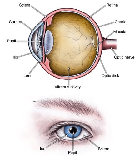 acute_angle_closure_glaucoma1_revised!.jpg