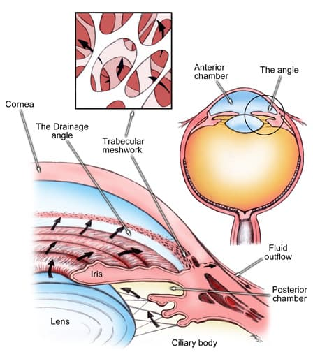 acute_angle_closure_glaucoma2_revised!.jpg