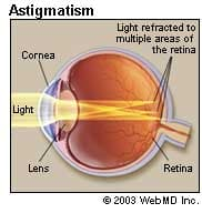 astigmatism: causes, symptoms, diagnosis, and treatment, Skeleton