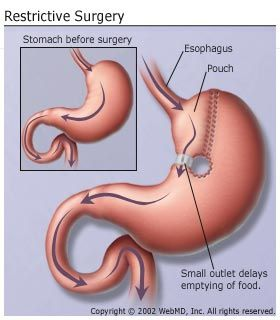 Restrictive Surgery For Weight Loss