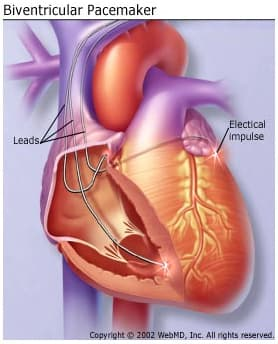What Is a Biventricular Pacemaker?