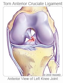 Illustration of torn ACL in left knee joint