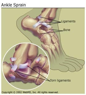 Understanding sprains and Strains