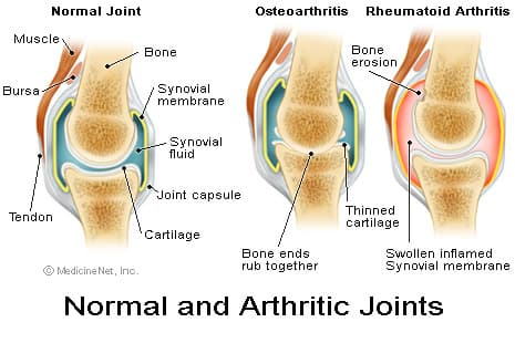 Arthritis knees cracking noise