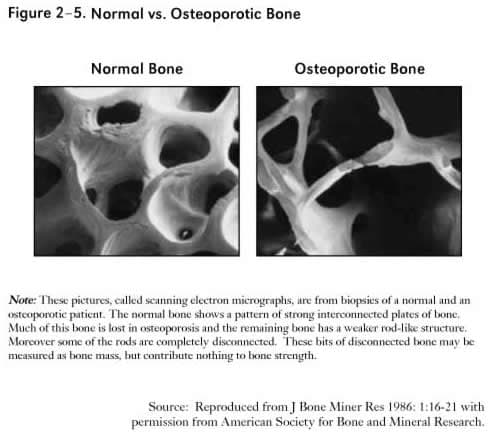 picture_of_osteoporosis