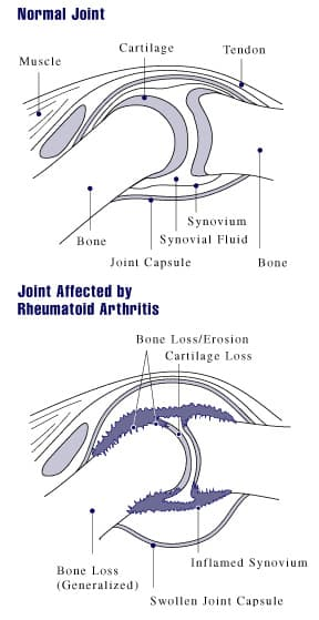 Understanding Juvenile Rheumatoid Arthritis Basics on What Are The Different Types Of Doctors Reference