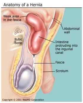 What Is a Hernia? Inguinal, Incisional, Umbilical, Hiatal