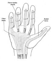 Finger Infection Hand Illustration