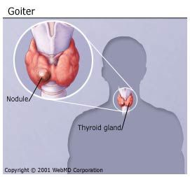 What Is A Goiter What Causes Goiters