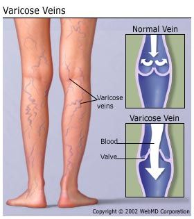 varicose veins in thigh