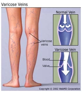 can varicose veins cause knee pain