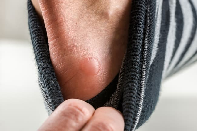 photo of blister on foot
