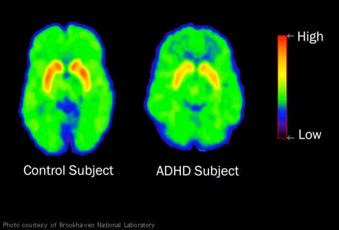 Brain scans showing ADHD in child