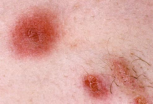 Mrsa staph skin infection