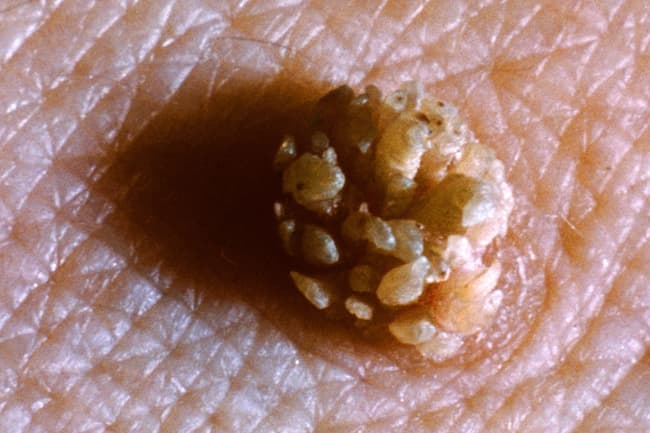 photo of genital wart