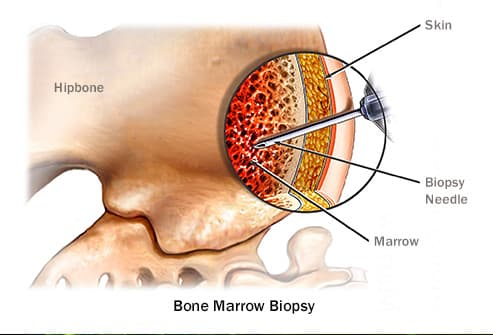 illustration of bone marrow biopsy