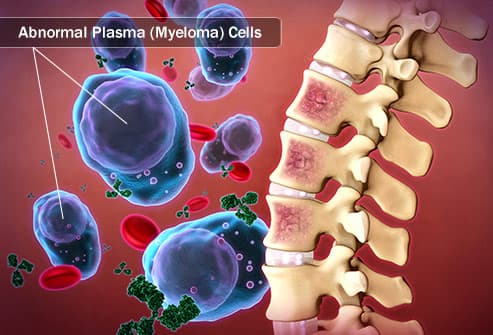 Illustration of multiple myeloma plasma cells