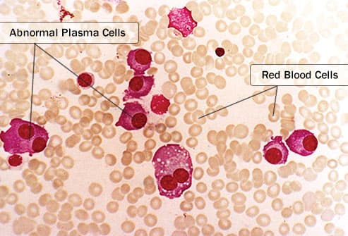 multiple myeloma in bone marrow