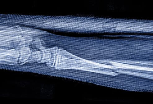 xray of fractured distal radius