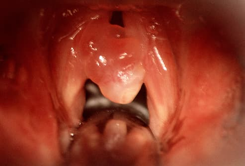 vocal cord polyp