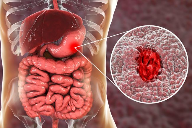 Signs You May Have A Stomach Ulcer
