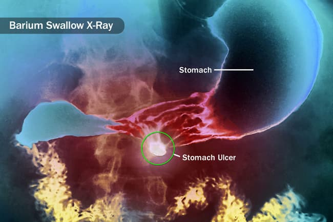barium swallow x-ray
