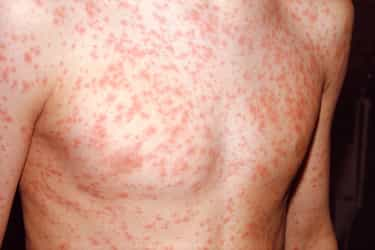 Can hpv virus cause hives - Hpv vaccine side effects hives - Hpv and cancer link