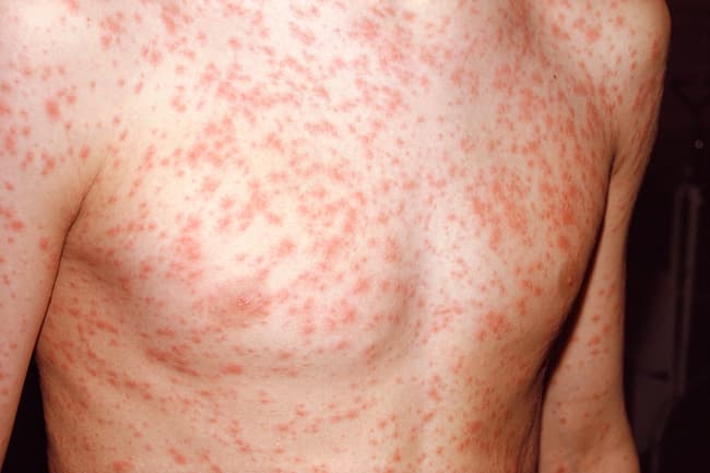 rubella rash on chest
