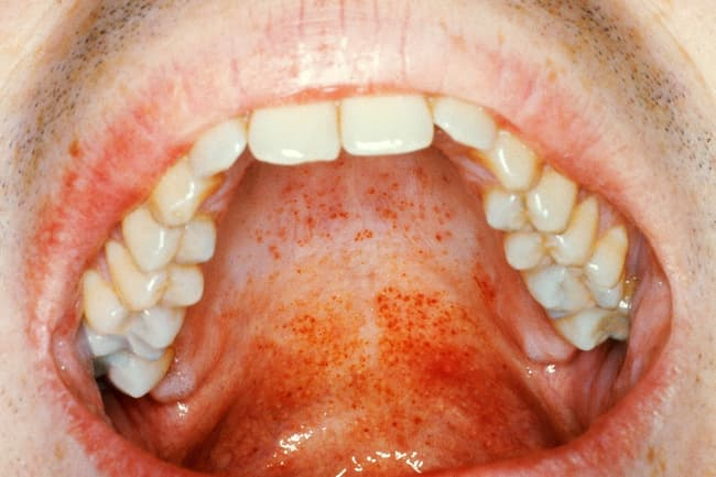 throat rash mononucleosis
