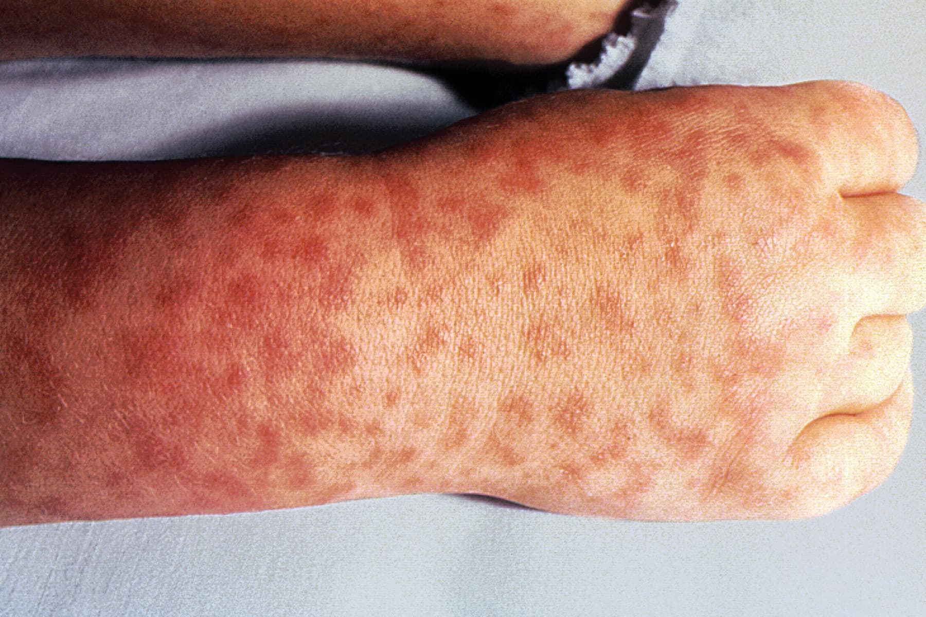 That interfere, rash after fever adult