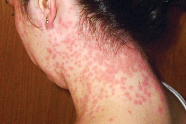 zika rash on neck
