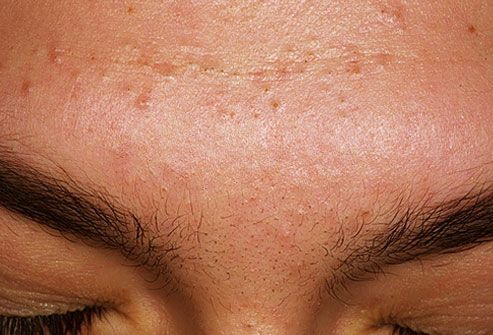 Acne, causes, types and treatments in 2020 acne mechanica