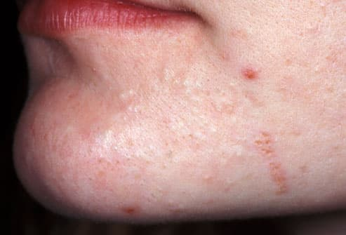 Acne Visual Dictionary: Pictures of Types of Acne and How to Treat Them