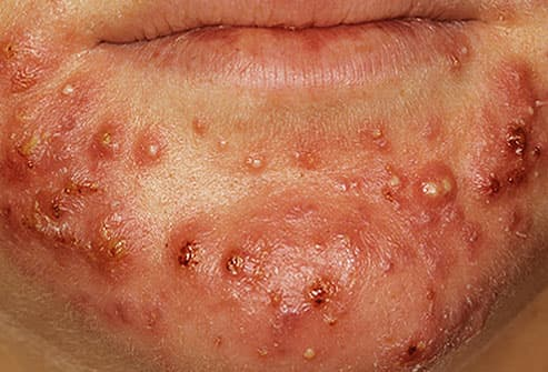 topical steroid cystic acne